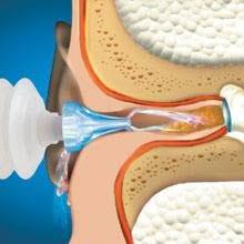 mack s prorinse earwax removal system 0 5 fl oz ear