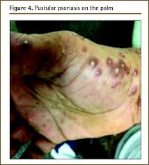 Pityriasis Rosea Christmas Tree Distribution by Diagnosis And Management Of Psoriasis The College Of Family