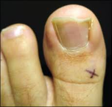 Toenail Separated From Nail Bed by Management Of The Ingrown Toenail American Family Physician