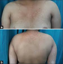 Woods Lamp Examination by 2017 1 11 Pityriasis Our Dermatology Online Journal