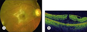 1168 A Color Fundus Photograph Of An Epiretinal Membrane With Pseudohole B Optical Coherence Tomography Showing Presence