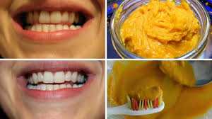How to Naturally Whiten Your Teeth at Home