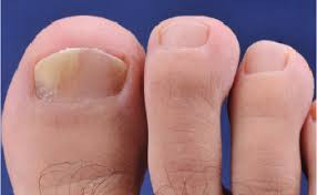 Nail Bed Melanoma by Addressing The Frustrations Of Nail Disorders The Dermatologist