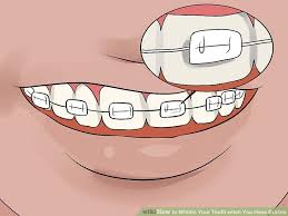 3 Ways to Whiten Your Teeth when You Have Braces wikiHow