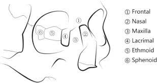 Orbital Floor Fracture Icd 9 by The Management Of Naso Orbital Ethmoid Noe Fractures Sciencedirect