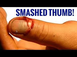 Thumb Versus Car Door Fracture Nailbed Laceration Injury