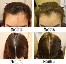 excessive hair shedding causes there are many exles of hair loss treatment for but what