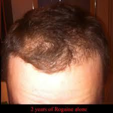 Rogaine Foam Shedding Phase by Regarding Minoxidil Stoppage Baldtruthtalk Com
