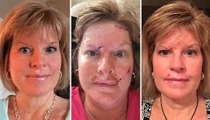 This Woman d Raw s of Her Skin Cancer Recovery to Warn