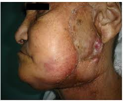Christmas Tree Rash Pityriasis Rosea Contagious by Viral Infections Of The Face Clinics In Dermatology