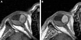 Arterial Enhancement Of Choroidal Melanoma On Mri Scan Enabling Imaging Differentiation Between The Tumor And Retinal Detachment