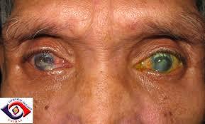 Corneal Perforation With Iris Prolapse 1perforatedcornealandopacity22
