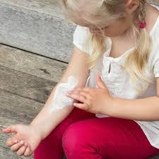 7 tipps neurodermitis bei kindern was hilft brigitte de