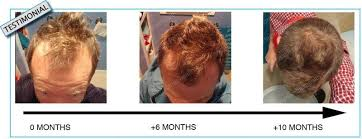 Minoxidil Shedding Phase Duration by Rosemary Oil For Hair Loss Not So Fast See Photos Perfect