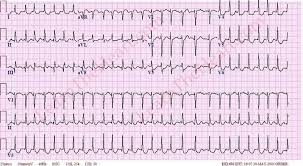 Atrial Fibrillation Case 24