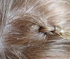 Natural hair shedding and managing hair loss in safety Lucinda