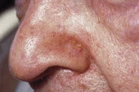 dermite du siege dermatite séborrhéique sciencedirect