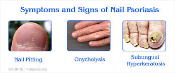 nail psoriasis causes symptoms diagnosis treatment prevention