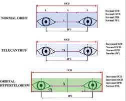 Orbital Floor Fracture Icd 9 by Maxillary Orbital Noe Fractures At Mcgill University Studyblue