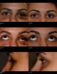 Orbital Floor Fracture Treatment by Orbital Fracture Maine Eye