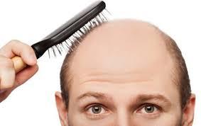 Orang Muda Gugur Rambut