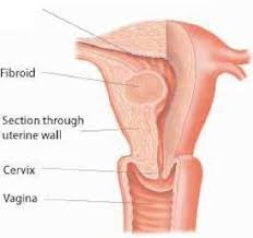 shedding uterine lining before period the uterus structure function and common problems family doctor