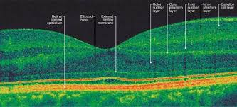 Idiopathic Epiretinal Membrane And Vitreomacular Traction Preferred Practice PatternR Guidelines