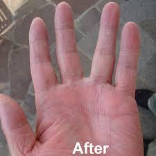 uvb l for ultra violet light treatment of psoriasis vitiligo