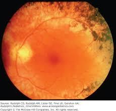 Christmas Tree Cataract Myotonic Dystrophy by Chapter 592 Genetic Eye Diseases Rudolph U0027s Pediatrics 22e