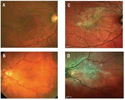 The Epiretinal Membrane Is Difficult To Discern With Fundus Photography A And B But It Can Easily Be Imaged Multicolor Scanning Ophthalmoscopy C