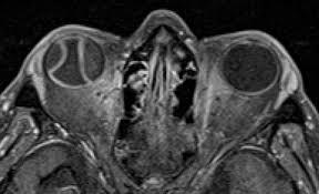 Radiology Quiz 30499