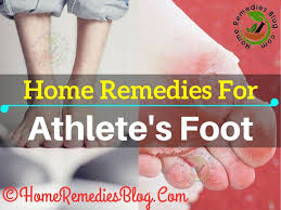 15 Proven Home Reme s to Cure Athlete s Foot Naturally Home