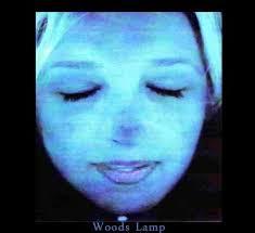 Woods Lamp Examination by Is It Tinea Versicolor Or Vitiligo Vitiligo Cover