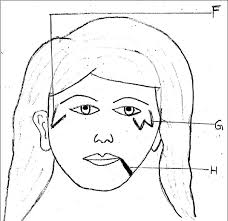 Figure 4 Diagrammatic Representation Of Facial Pigmentary Demarcation Lines Group F H