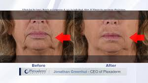 Eyes - Plexaderm Rapid Reduction Cream PLUS For Sale In Outside ... Chtalksports Coupon Code Plexaderm Rapid Reduction Serum 3 Bottles New Advanced Formula Free Worldwide Shipping Glamified Makeup Coupons Promo Discount Sudden Change Undereye Firming Exclusive 10 Off Coupon Code Plxret1 Valid On Any Sheer Science Best Buy Student Open Box Louie Spence Mterclass Hng Dn N Tp V Kim Tra Ha Hc 1 27 Off Premier Look Codes Wethriftcom Apps To Help You Find The Best Deals For Holiday Shopping Fox17 Sunspel Las Vegas Groupon Buffet Eyes Cream Plus Sale In Outside Twitter Yes Really Works You Can Try