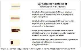 melanonychia the importance of dermatoscopic examination and of