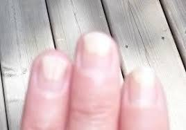 tips by ask cosmetics blog onycholysis when nails detach from