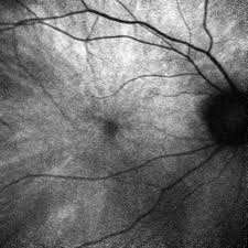 Fundus Autofluorescence In Carriers Of Choroideremia And Correlation With Electrophysiologic Psychophysical Data