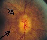 Circumferential Retinal Folds In Peripapillary Region Due To Papilledema The Main Cause Of Optic Nerve