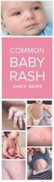 Christmas Tree Rash Pityriasis Rosea Contagious by Best 20 Common Skin Rashes Ideas On Pinterest Nurse