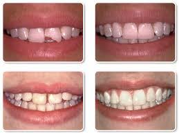 A Closer Look at Bonding Hillside Dental Northeast El Paso Dentist