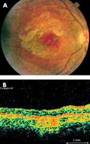 Optical Coherence Tomography Imaging Of Severe Commotio Retinae And
