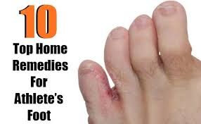 Top 10 Home Reme s for Athlete s Foot