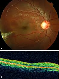 Color Photograph And OCT Image Of The Right Eye 6 Months After Vitrectomy A MH Is Closed Retinal Folds Have Disappeared Within Area ILM