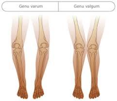 l impact de la course sur l arthrose du genou