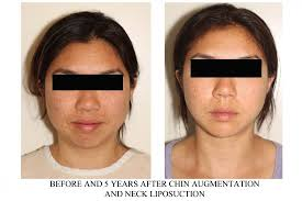 Facial Liposuction Vancouver by Cosmetic Surgeon Dr Denton