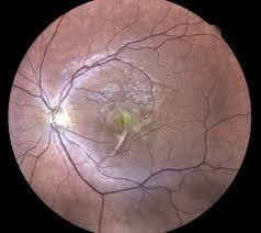 Eidon OCT Angiography