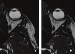 Axial CISS Constructive Interference In Steady State MRI Images Showing That Theretinal Choroidal Lesion Shows Similar Signal Characteristics As On
