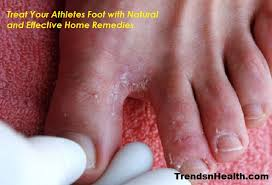 Athletes Foot treatment Symptoms Treatment Home Remedy