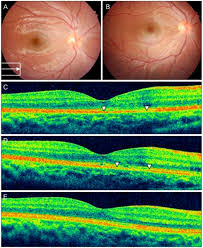 3 Days Post Trauma Showed Retinal Opacity On The Macula Arrow In Box Denotes Orientation Of Optical Coherence Tomography OCT Line Scan